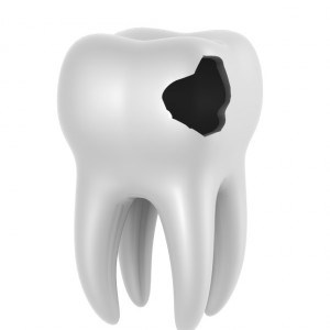 Huller i tænderne